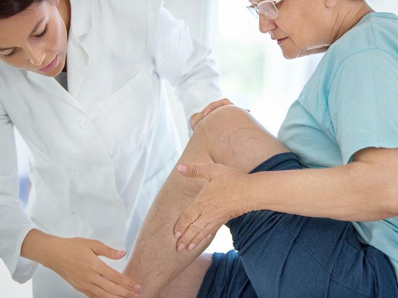 Deflanil aiuta il microcircolo problema alle gambe